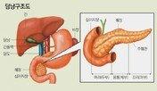 초기증상 거의 없는 췌장암, 황달 있다면 의심해봐야