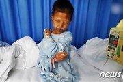 G2 중국 '빈부' 문제 일깨운 영양실조 여대생 끝내 사망