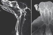 병든 세포만 비추는 '나노램프'로 암세포 움직임 실시간 본다