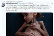 '예멘 내전 고통의 상징' 7세 소녀, 굶주림 없는 세상으로 떠나다