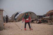 '깡통 의족' 시리아 소녀, 새 다리 얻었다…터키 구호단체서 도움