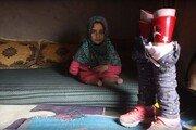 '깡통 의족'으로 생활하던 시리아 소녀, 새 의족 선물에…