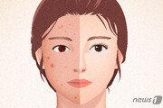 예뻐지려 속눈썹 연장하고 파마…눈 건강에 '독'