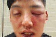 """경찰 """"'양호석 차오름 폭행' 신고 접수…양측 소환조사 계획"""""""