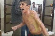 터키·쿠르드족, 휴전 하루만에 또 교전…어린이에게 백린탄 공격