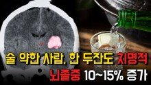 술 약한 사람, 한 두잔도 치명적…뇌졸중 위험 10~15% 증가