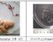 """학교 급식서 나온 '고래회충'…""""위장벽 관통해 복막염 유발까지"""""""