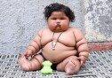 """생후 8개월 여아, 17kg 육박… """"식욕 못 참아, 초고도 비만"""""""