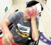 배달 '2시간 지연'에 항의한 손님 폭행한 배달원… '충격'