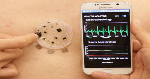 Korean researchers first develop a patch enabling telemedicine