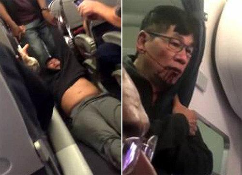 オーバーブッキングの米ユナイテッド航空、乗客を強引に引きずり降ろし