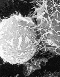 불교의 '자아'는 면역학의 '자기'…        알레르기 극복은 곧 열반의 과정