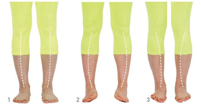건강한 발 가꾸기