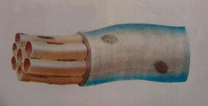 21세기 의학혁명 제3순환계 인체 내 존재 확인