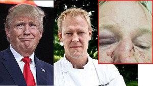 '트럼프 닮아서' 폭행 당한 백인 남성