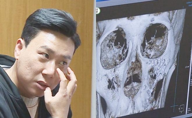 """이상민, 얼굴에 철심 가득…""""폭행 당해 전치 8주"""""""