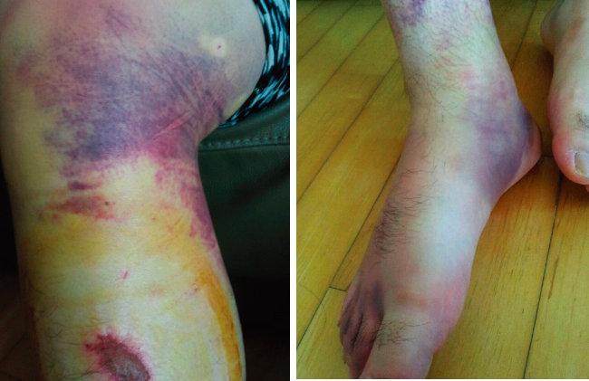 부산대병원에서 발생한 폭행 사건으로 전공의들의 다리와 발에 피멍이 든 모습.[뉴스1]