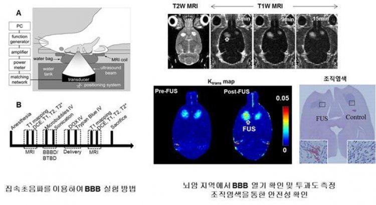 수술없이 초음파 이용해 뇌암 치료하는 신기술 나왔다