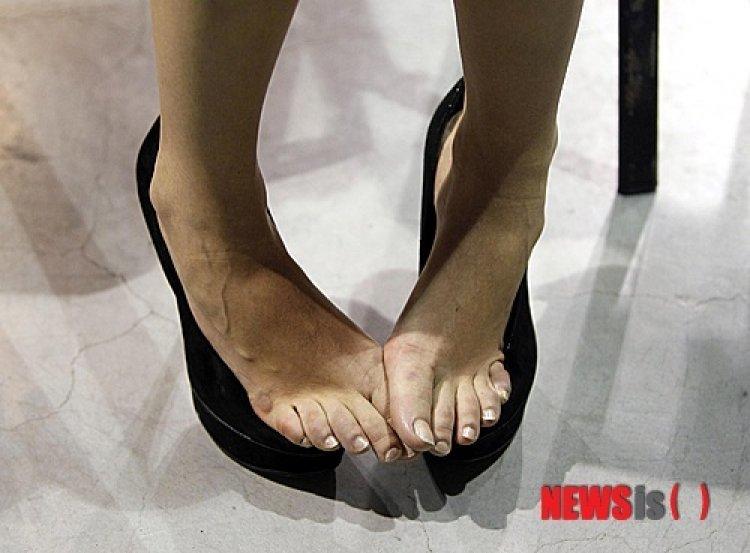 손발톱무좀 10명중 6명 '자가진단 치료'…절반이상 완치전 치료중단