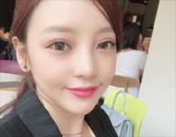 구하라, 안검하수 수술 후근황 공개…더욱 또렷해진 인상