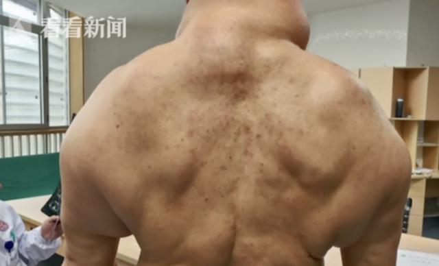 Kết quả hình ảnh cho 多発 性 対称 性 脂肪 腫 症