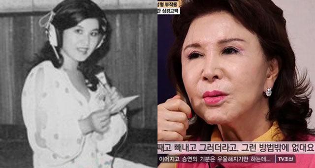 """김세레나 """"야매 성형수술…죽고 싶어"""" 충격 비주얼"""