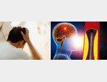 뇌졸중은 뇌혈관이 막혀 발생하는 뇌경색과 뇌혈관 파열로 뇌 조직 내부에 혈액이 유출되는 뇌출혈을 총칭하는 질환이다. [GettyImages]
