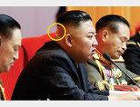7월 30일 북한 노동신문이 공개한 김정은 국무위원장의 사진. 뒤통수에 파스, 밴드 등으로 추정되는 것(원 안)을 붙인 모습이 눈에 띈다. [