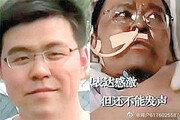 코로나 환자 돌보다 감염… 얼굴 검게 변했던 中의사 4개월 투병끝에 결국 사망