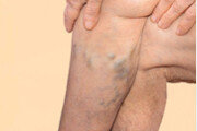 다리 붓거나 통증 있으면 하지정맥류?… 초음파로 정밀 진단해야