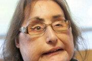 美 최초 안면이식 수술 여성 사망