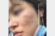 성희롱성 발언 후 폭행… 한국계 美 여성에 또 증오범죄