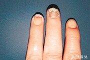[홍은심 기자의 긴가민가 질환시그널]손발톱 변형 땐 '건선' 의심… 방치하면 관절염 생길수도