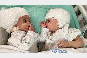 머리 붙어 태어난 이스라엘 쌍둥이 자매, 1년 만에 마주 보다