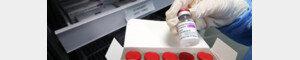AZ접종후 '희귀 혈전증' 사망 30대, 백신 인과성 첫 인정