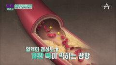 돌연사의 원인♨ 혈관 속 시한폭탄 '혈전'