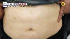21세기 국민병 당뇨와의 전쟁_내 몸을 살리는 유레카 34회 예고 TV CHOSUN 211003 방송