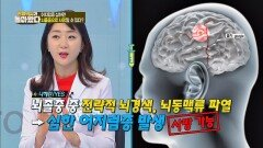 '뇌경색 or 뇌동맥류 파열'이 생기면 심한 어지럼증이 온다
