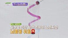 땀 배출량에 따라 끈적해지는 혈액.. 점도가 올라가면 뇌졸중이 온다! | JTBC 210612 방송