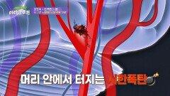 나이 막론! 언제든 찾아올 수 있는 머릿속 시한폭탄 뇌동맥류💣 | JTBC 210612 방송