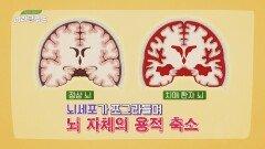온 가족을 힘들고 지치게 하는 치매 환자의 뇌의 실제 모습   JTBC 210710 방송