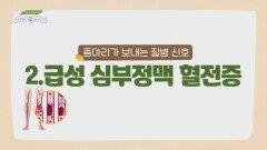 한 쪽 다리만 돌처럼 딱딱하게 붓는 '급성 심부정맥 혈전증'   JTBC 210724 방송