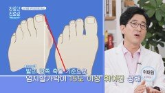 4단계로 나뉘는 '무지외반증' 증상 확인 🦶   JTBC 210503 방송