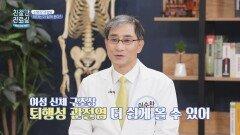 여성에게 더 쉽게 오는 퇴행성 관절염 (ft. O자형 다리)   JTBC 210503 방송