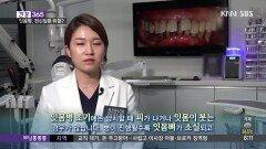 [건강365]-피나는 잇몸, 심근경색 위험?