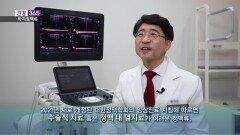 [건강365]하지정맥류와 초음파 유도하 혈관경화요법