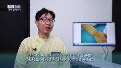 [건강365] 비타민D 충전? 과하면 ′′햇빛 알레르기′′