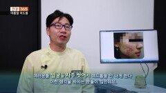 [건강365]-코로나시대 ′′마스크네-마스크와 여드름′′ 극복법