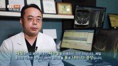 [건강365]-척추 재수술, 한 번으로 끝내려면?