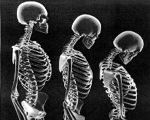 '소리 없는 뼈 도둑' 골다공증을 막아라!